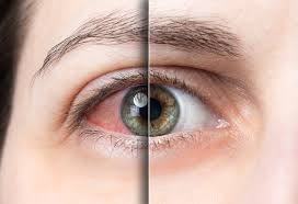 Best eye drops for red eyes?